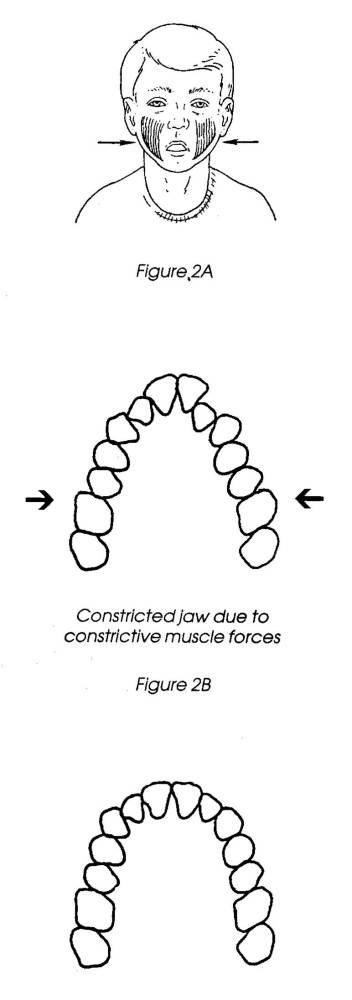 The Airway, Breathing and Orthodontics (4/6)